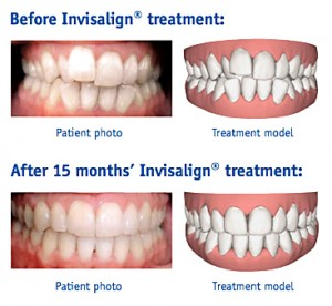 invisalign 15 months